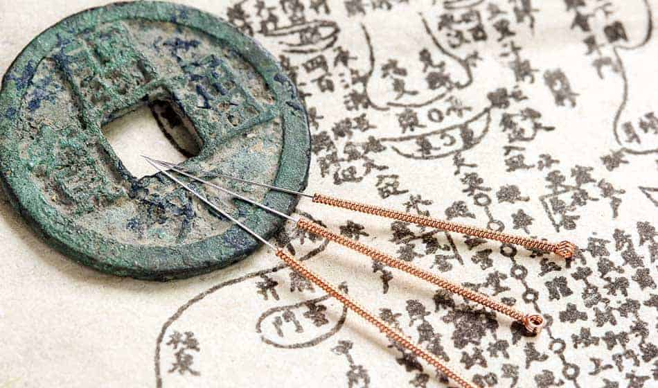 Akupunktur im Fernstudium erlernen